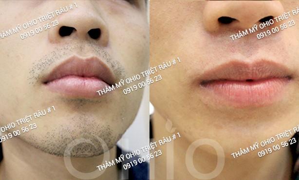 Hiệu quả sau khi triệt râu cho nam giới