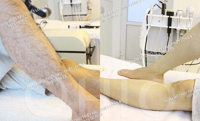 Hiệu quả triệt lông chân