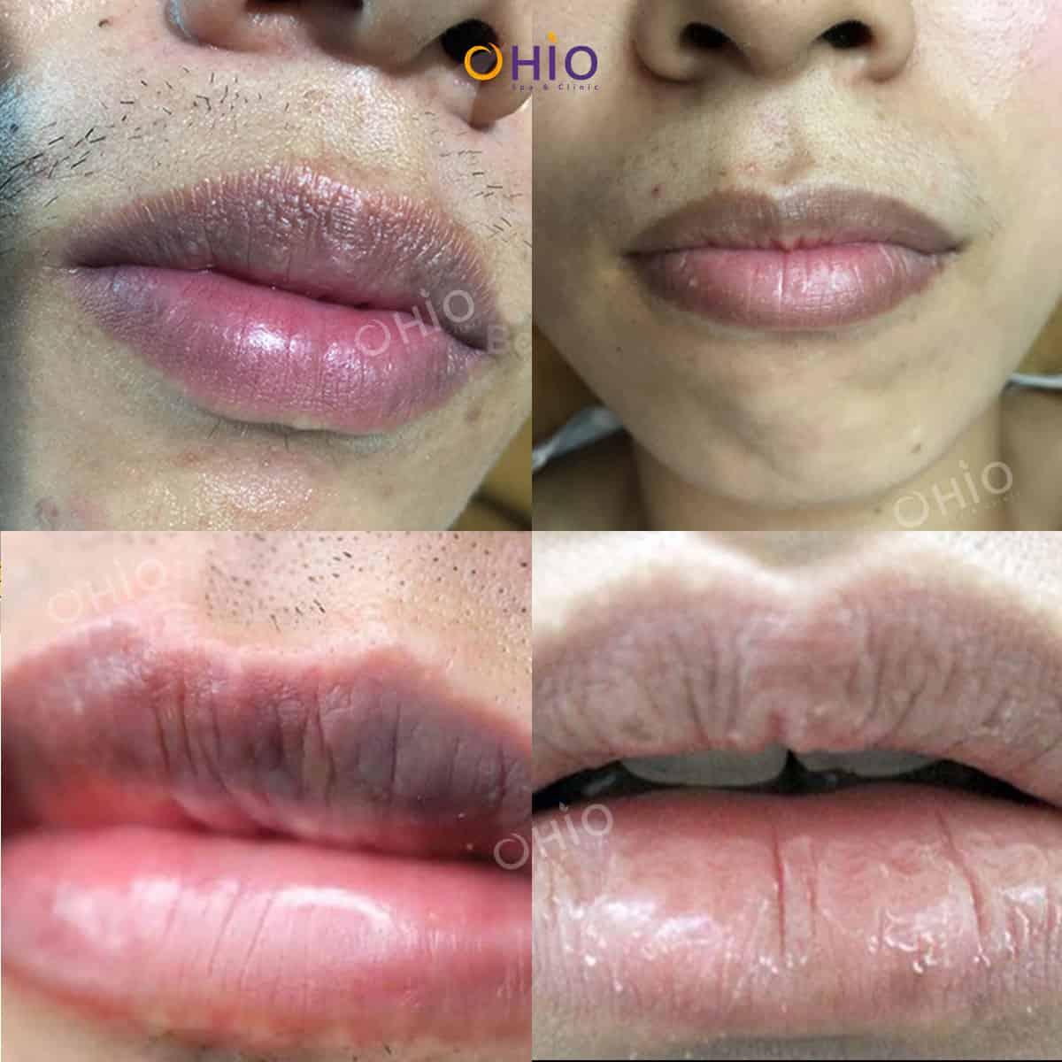 Hiệu quả khử thâm môi nam