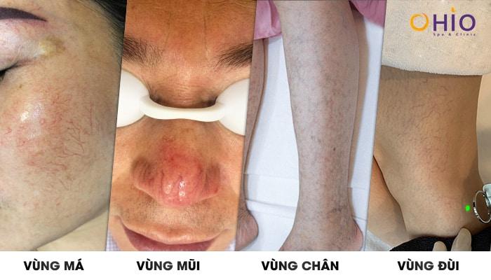 các vùng da bị giãn mao mạch
