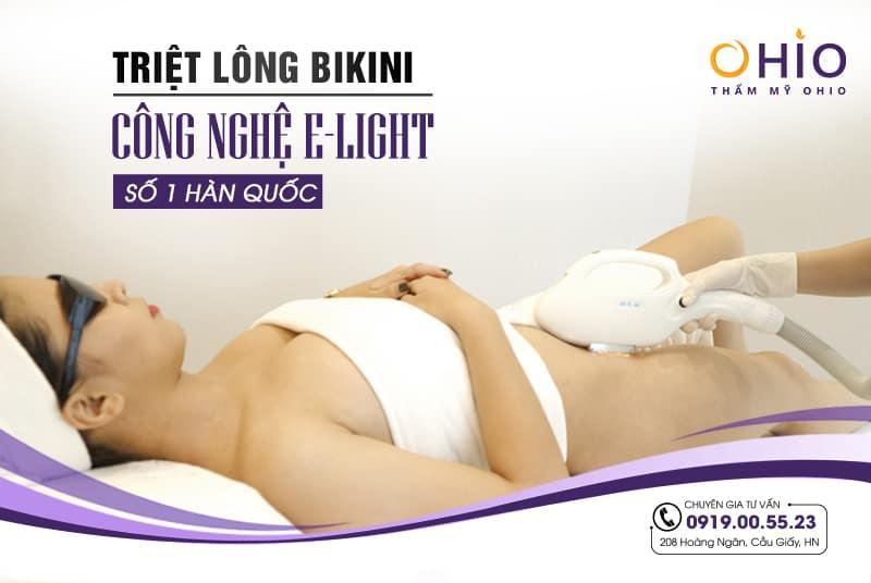 Triệt lông bikini vĩnh viễn với công nghệ E-Light