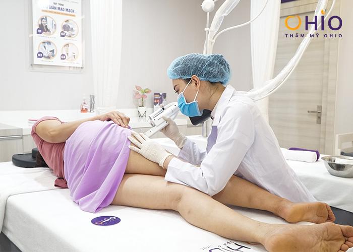 Điều trị giãn mao mạch Mercury LX 2020