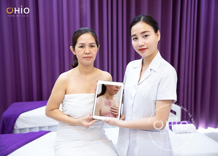 Khách hàng Nguyễn Thị Phương xóa chàm bớt đỏ thẩm mỹ OHIO