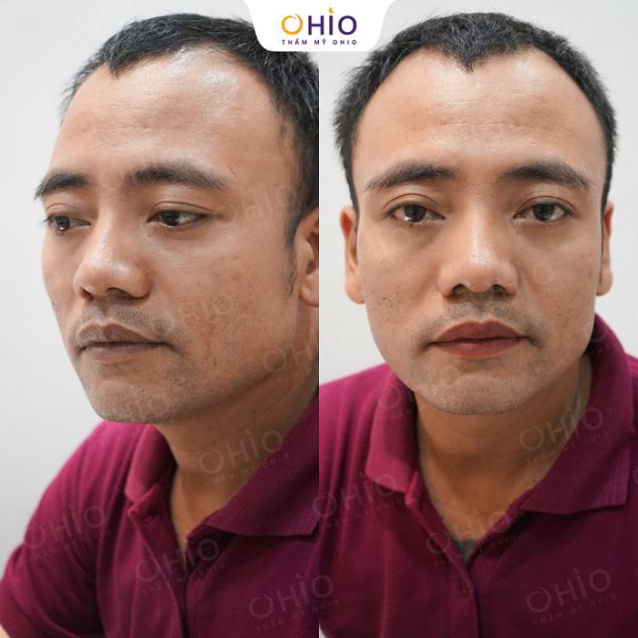 Kết quả khử thâm môi nam tại OHIO 2