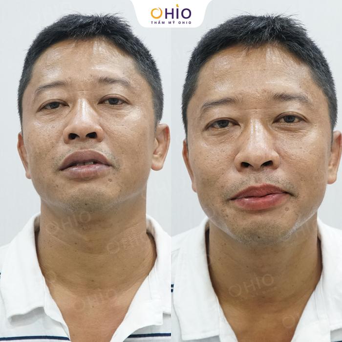 Kết quả khử thâm môi nam tại OHIO