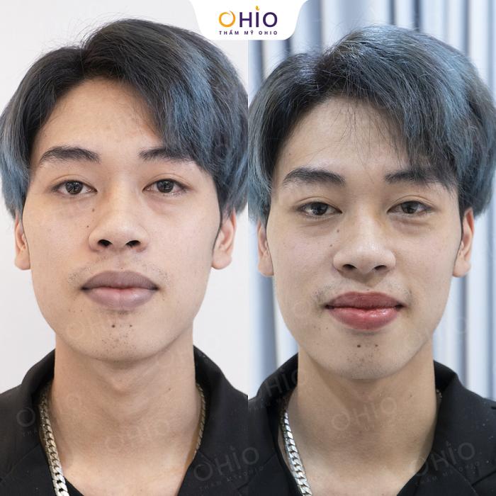 khử thâm môi nam tại OHIO