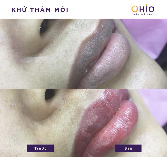 Kết quả khử thâm môi nam tại OHIO 3