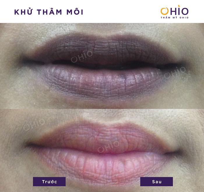 Kết quả khử thâm môi nam tại OHIO 1