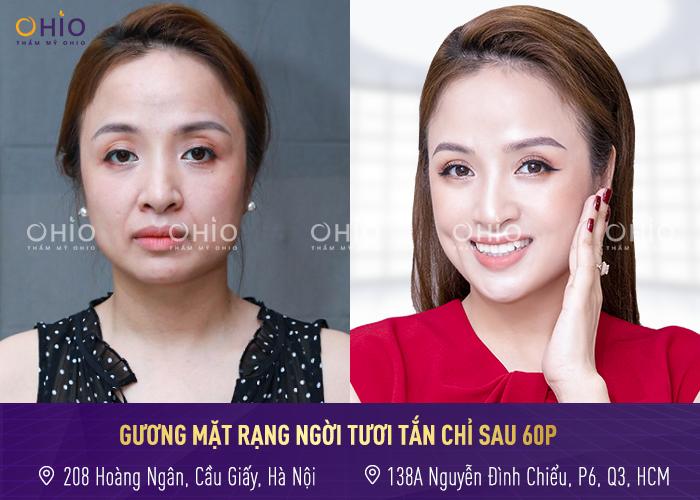Khách hàng thực hiện trẻ hóa toàn diện dưới bàn tay tài hoa của bác sĩ Trịnh Trung Thực