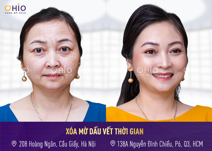 """Chỉ trong 1h bác sĩ Trịnh Trung Thực đã biến gương mặt """"lão hóa ngược"""" làn da căng bóng, hồng hào"""
