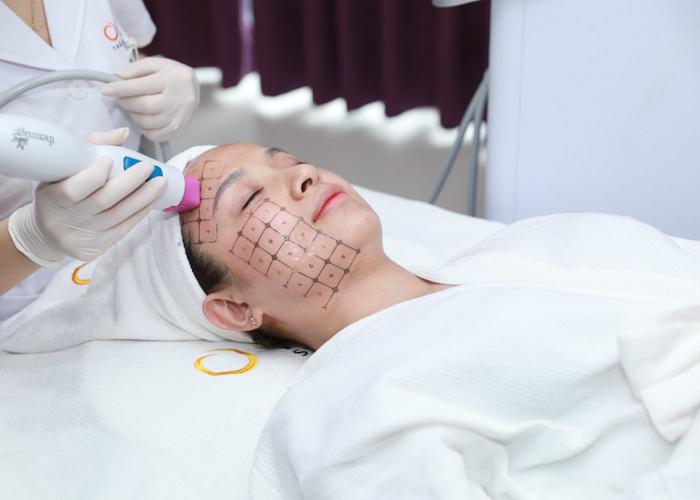Công nghệ trẻ hóa làn da