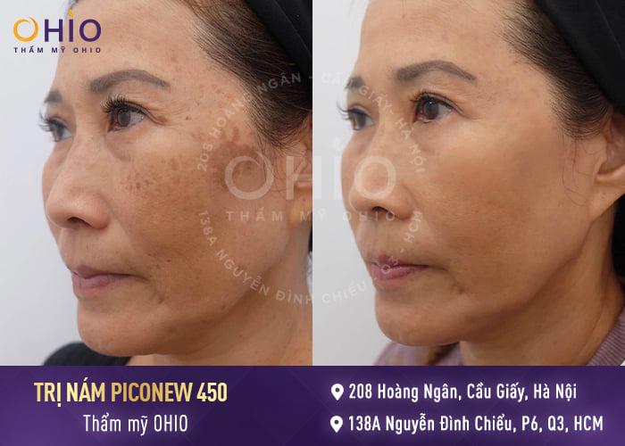 Cải thiện triệt để tình trạng nám da do nội tiết thay đổi vào thời kỳ mãn kinh