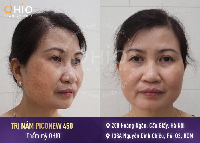 Trị nám an toàn hiệu quả, không gây bất kỳ tổn thương nào trên da
