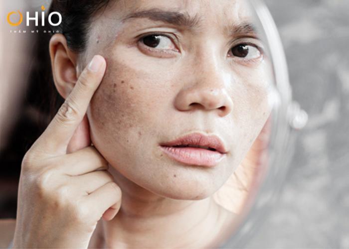 Nám da xuất hiện nhiều trên gương mặt ảnh hưởng đến thẩm mỹ.