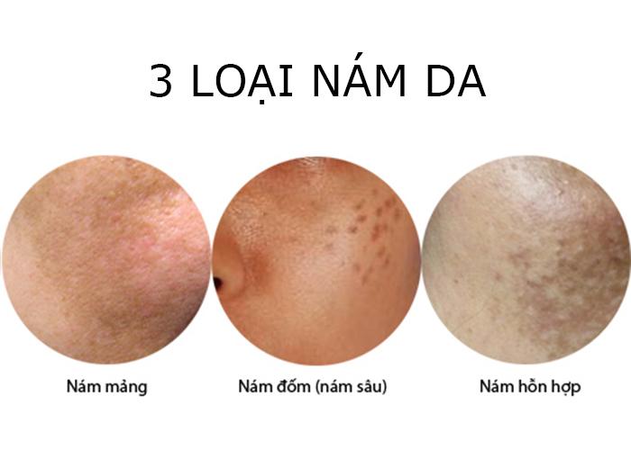 Hình ảnh minh họa các loại nám da