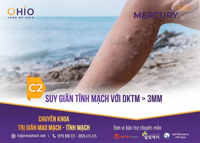 - Độ C2: Sợi giãn tĩnh mạch có kích thước lớn hơn 3mm