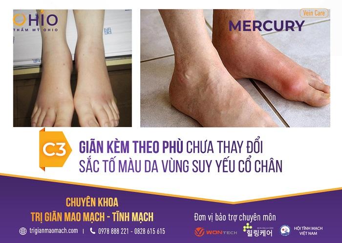 - Độ C3: Giãn tĩnh mạch chân kèm theo hiện tượng phù