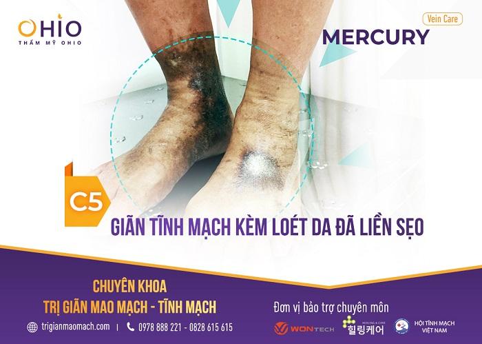 - Độ C5: Chân phù, sưng, nhức mỏi, biến đổi màu sắc da và vùng bị giãn tĩnh mạch trên chân sẽ viêm loét ở dạng thoái triển