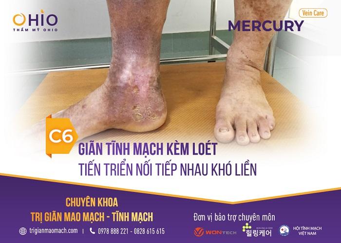 - Độ C6: Biến đổi màu sắc da chân vùng bị phù + viêm loét ở dạng tiến triển