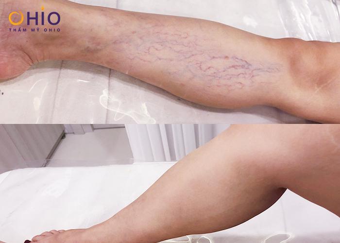 điều trịgiãn tĩnh mạch chân